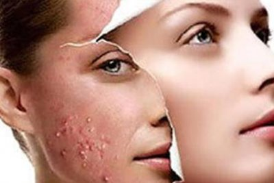 Acne Blemishes Treatment